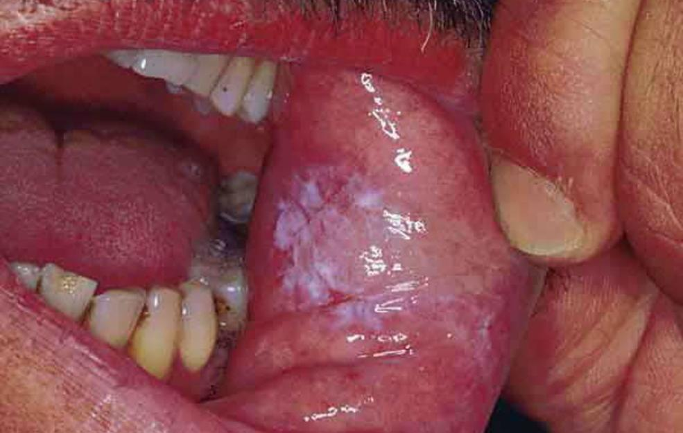 Infections in the mouth